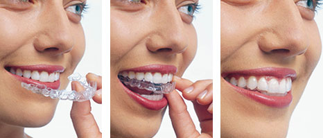 Invisalign: Braces | Clear Braces | Alternative To Metal Braces