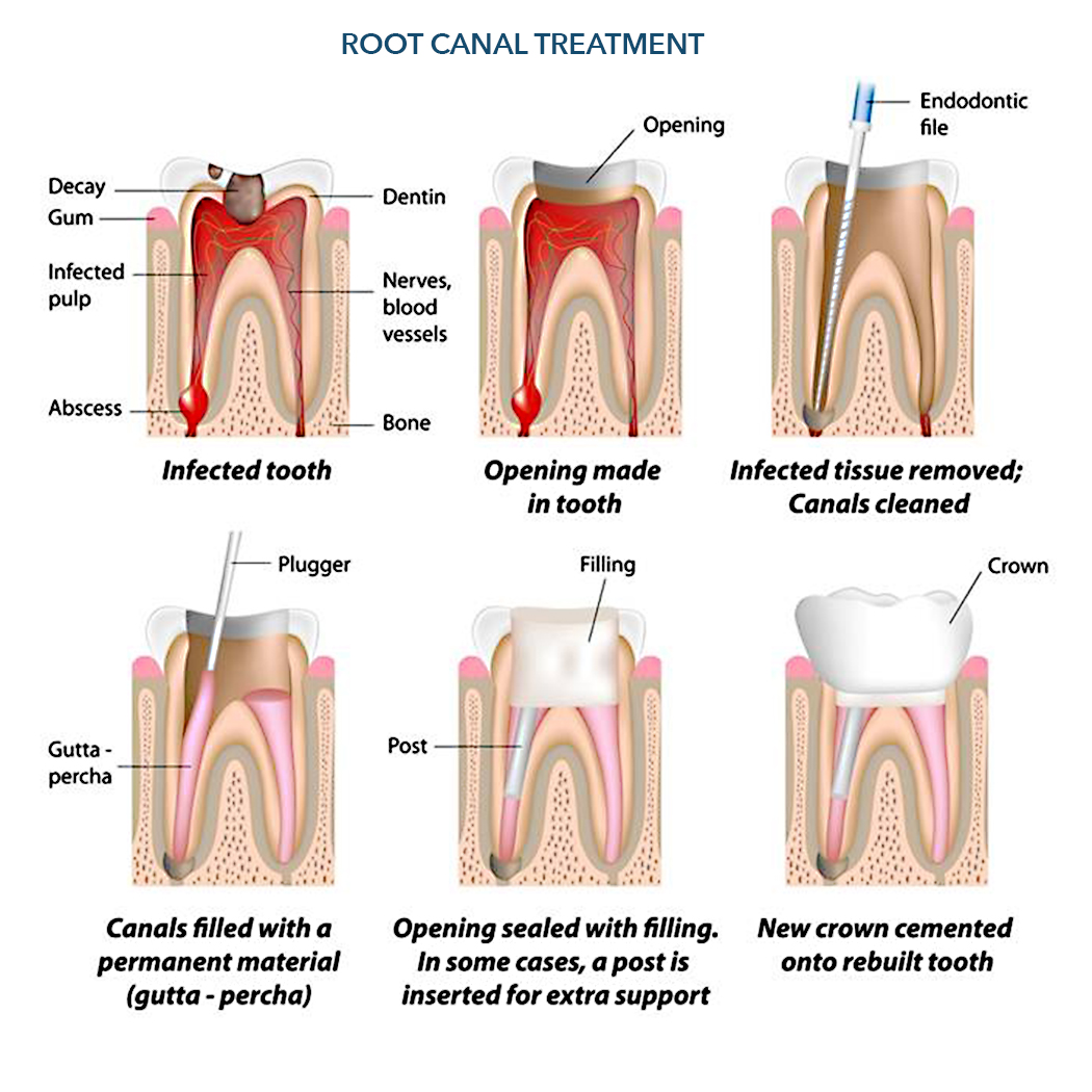 Root Cana Therapy